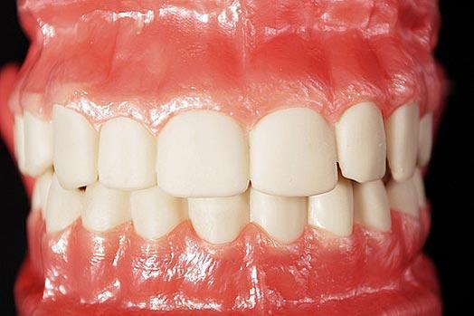 Balti spīdoši zobi šīs... Autors: Fosilija Dīvaināko atkarību TOP 5