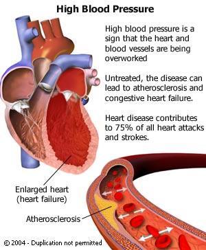 Sirds veic tik lielu spiedienu... Autors: Moonwalker Fakti par sirdi