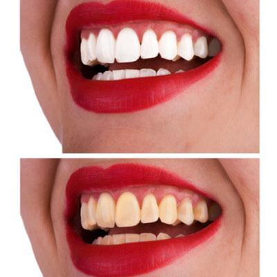 Dzelteni zobi Vai tev ir bijis... Autors: babavija Smēķēšanas ietekme uz izskatu.