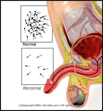 JEBKURA hormonālā iejaukšanās... Autors: Raitons skeletons Iz zinātnes