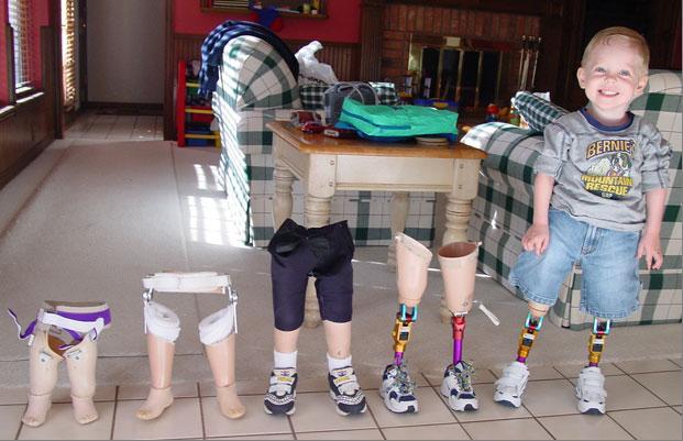 Autors: arvīds 40 Zēns bez kājām
