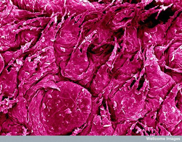 Mēles virsma garšas kārpiņas Autors: MILFS Aplūkojot pasauli ar mikroskopu