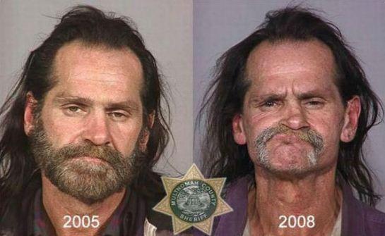 Autors: sibris Kā narkotikas izmaina cilvēka izskatu.