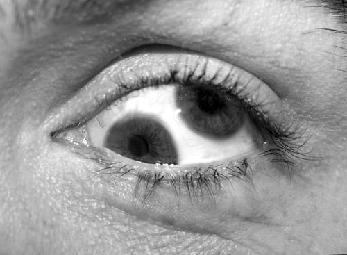 Autors: Fosilija Kāpēc divas acis ir labāk kā viena?