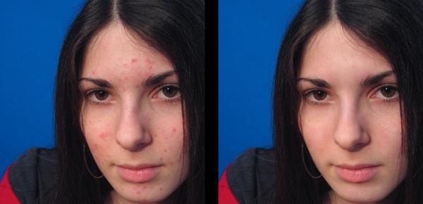 Pirms un pēc Autors: Esperanza Neatcel fotosesiju pinnes dēļ