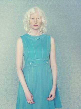 Autors: kjuvertijs Ar albīnismu sirgstošu cilvēku portreti