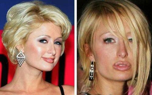 Paris Hilton Autors: druvalds Neizdevušās plastiskās operācijas