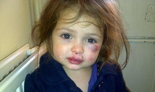 Viņai bija 6 gadi  tētis viņu... Autors: bluebubblegum Bēdīgi...