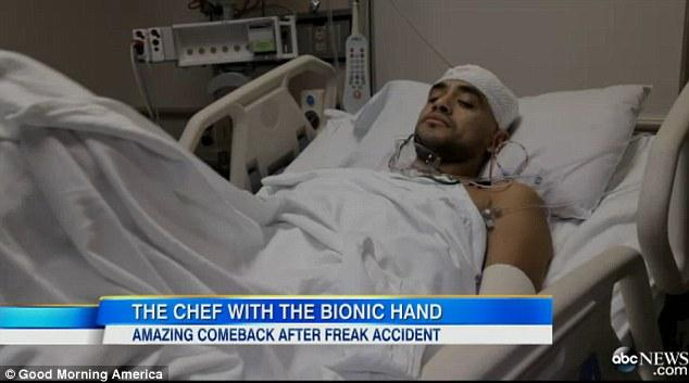 Eduardo pārvērtībās aizsākas... Autors: MJ Pavārs ar bionisko roku!!