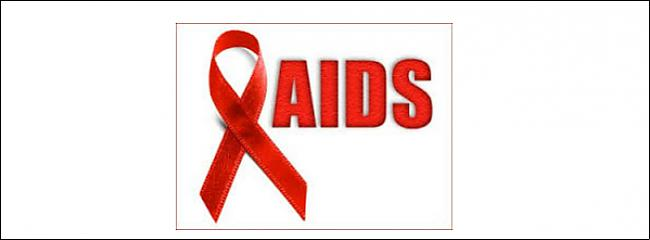 8 AIDS vīrussSazvērestības... Autors: MacroGlobe TOP 15 sazvērestības teorijas.