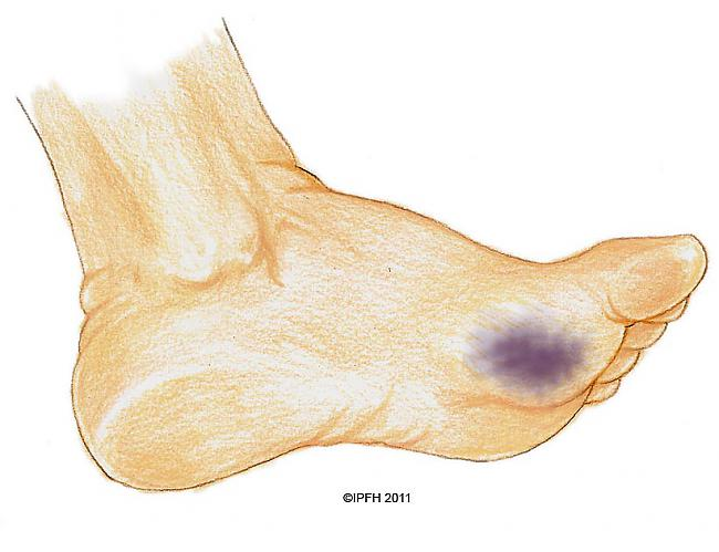 Hematoma ir norobežots... Autors: Fosilija Esam aktīvi! Kā neiedzīvoties traumās?