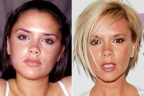 Viktorija BekhemaViktorija ir... Autors: Lords Lanselots Slavenību plastiskās operācijas - pirms un pēc!