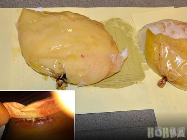 6 Kokaīna krūscaronu... Autors: rihcaa Narkotiku kontrabandas neveiksmīgie mēģinājumi.