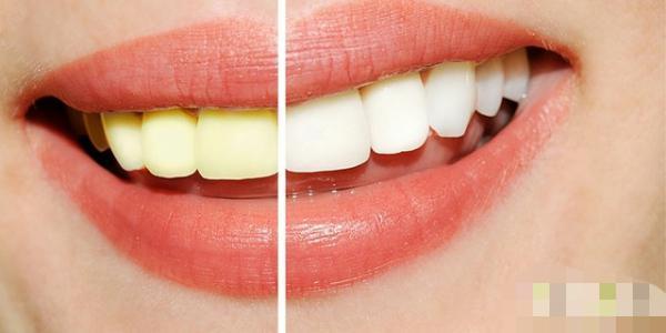 Slikta elpa un dzeltenīgi zobi... Autors: KlimpiņaLimpiņa Kas vīriešiem šķiet nepievilcīgs sievietēs?